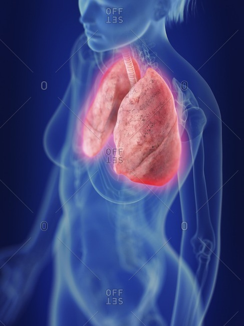 Illustration of an inflamed lung.