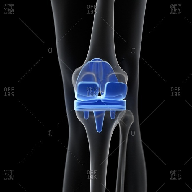 Illustration of a knee replacement.