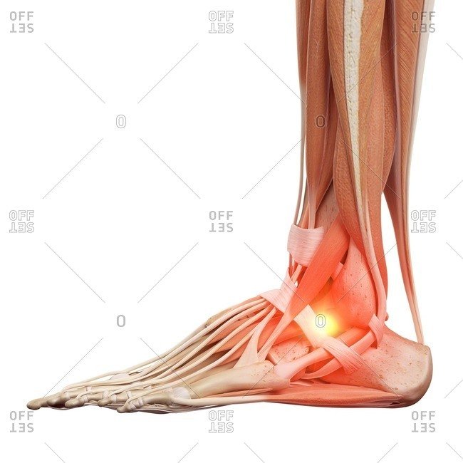 Illustration of a painful ankle.