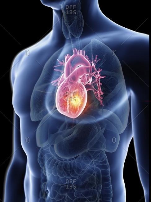 Illustration of a man's heart tumor.