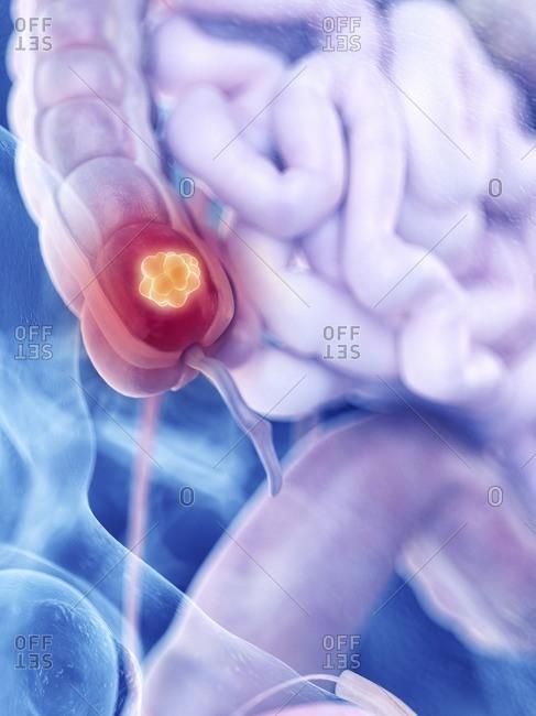 Illustration of colon cancer - Offset
