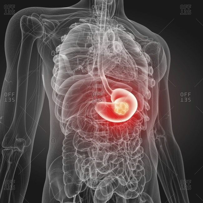 Illustration of stomach cancer.