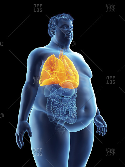 Illustration of an obese man's lungs.