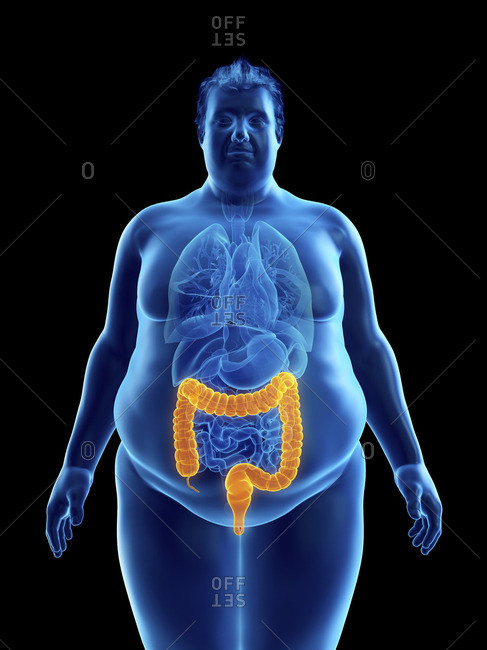 Illustration of an obese man's colon.