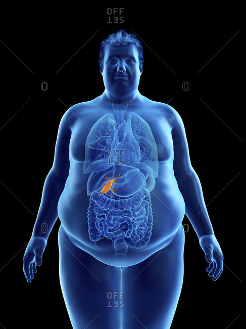Illustration of an obese man's gallbladder.