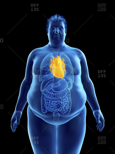 Illustration of an obese man's heart.