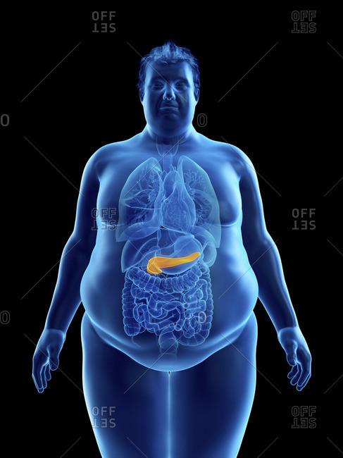Illustration of an obese man's pancreas.