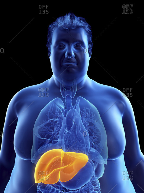 Illustration of an obese man's liver.