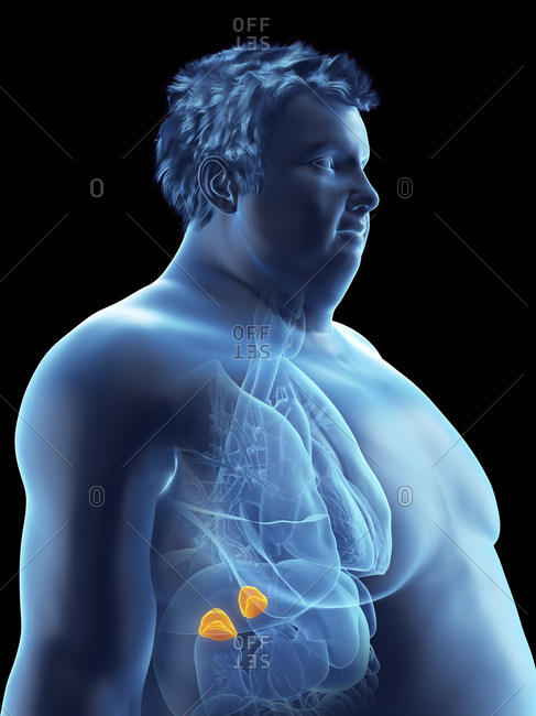 Illustration of an obese man's adrenal glands.