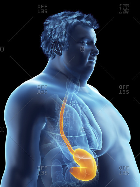 Illustration of an obese man's stomach.