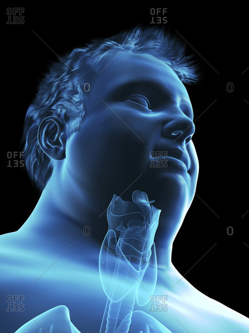 Illustration of an obese man's throat anatomy.