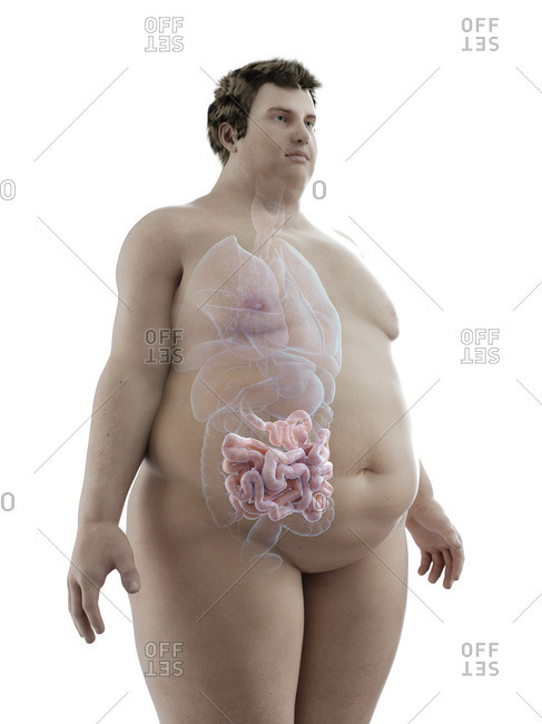 Illustration of an obese man's intestine.