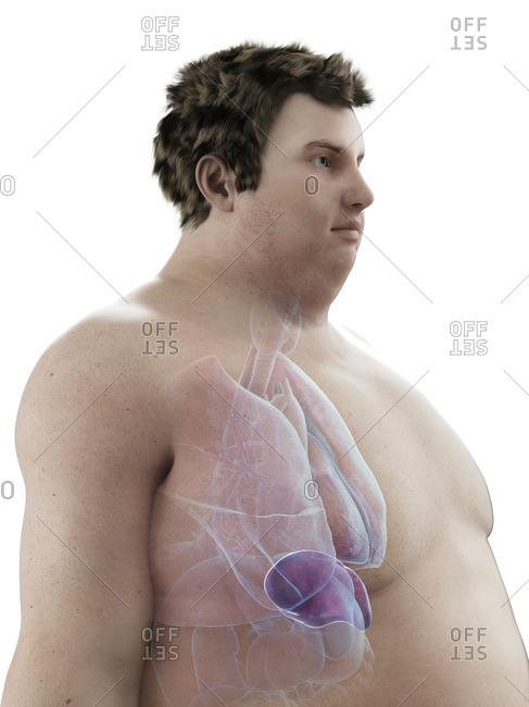 Illustration of an obese man's spleen.