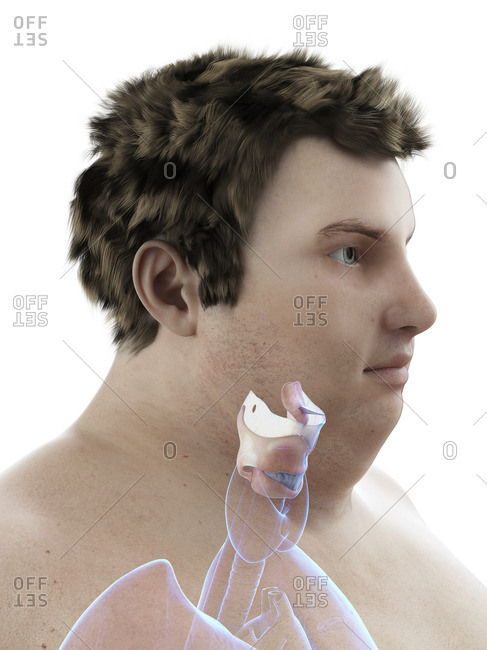 Illustration of an obese man's larynx.