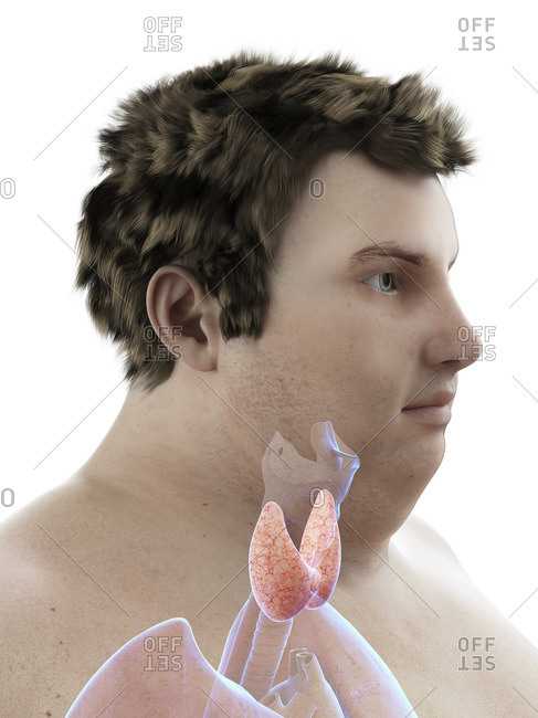 Illustration of an obese man's thyroid gland.