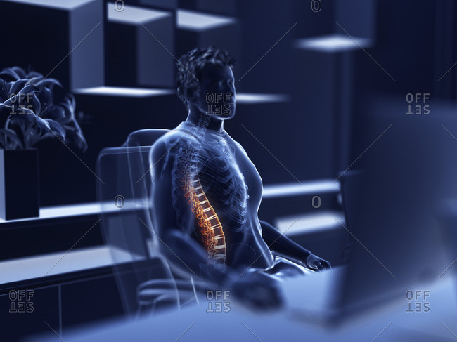 Illustration of an office worker with a painful back.