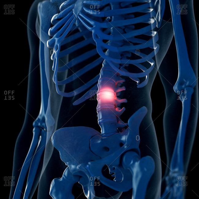 Illustration of a painful lumbar spine.