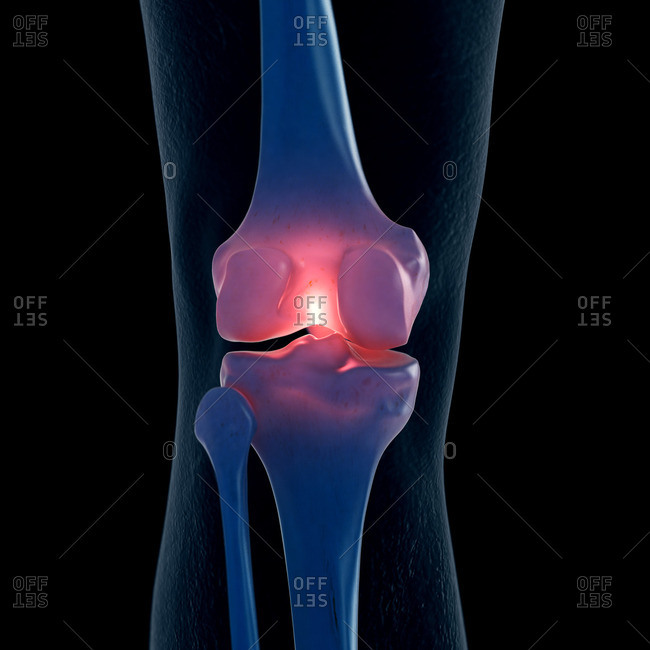 Illustration of a painful knee.
