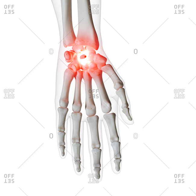 Illustration of a painful wrist.