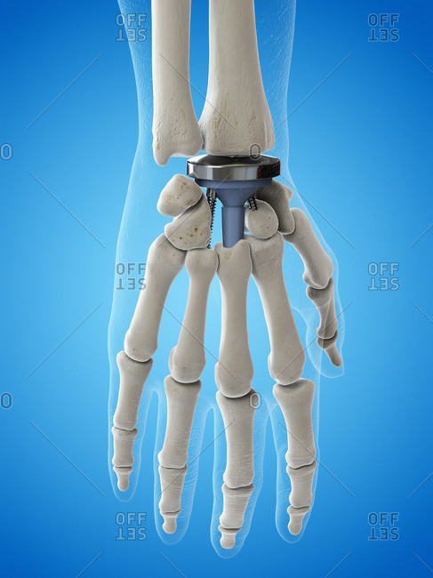 Illustration of a wrist replacement.