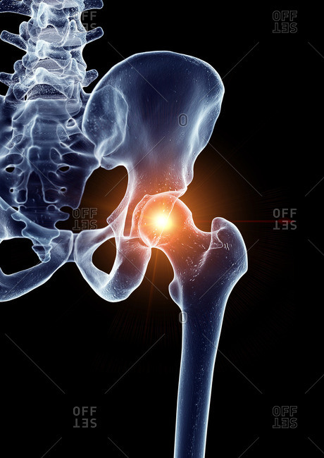 Illustration of a painful hip joint.