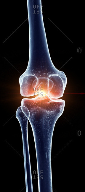 Illustration of a painful knee joint.