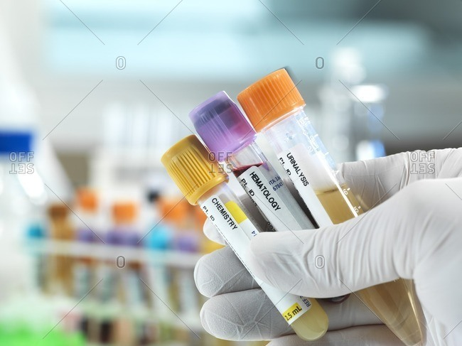 Technician holding blood, urine and chemistry human samples for clinical testing.