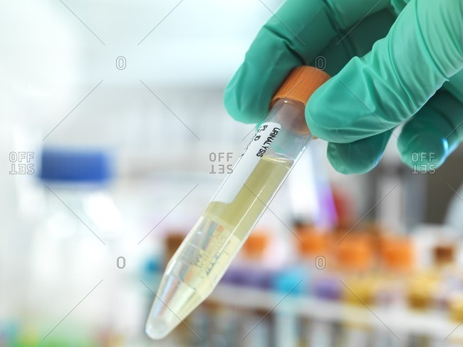 Technician holding a urine sample with other human medical samples in the background.
