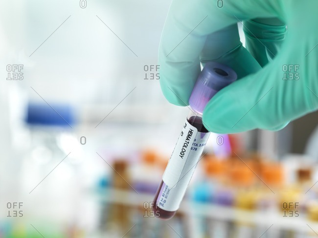 Technician holding a blood sample ready for testing with other human medical samples in the background.