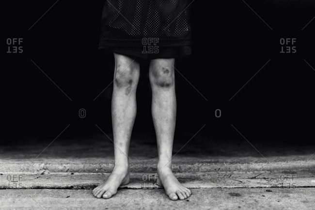 Boy with bruised legs - from the Offset Collection
