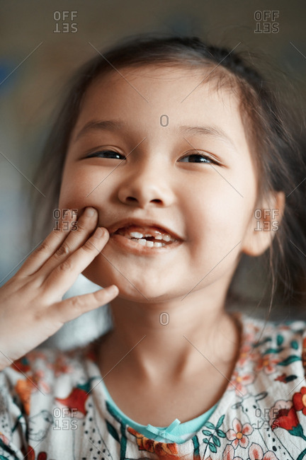 Cute smiling girl with new front teeth