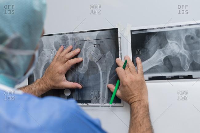 Hip prosthesis surgery