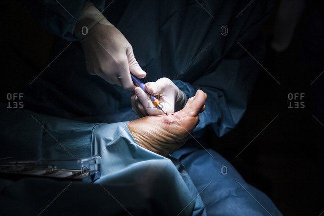 View of the patient's foot in full surgery, the surgeon putting a screw