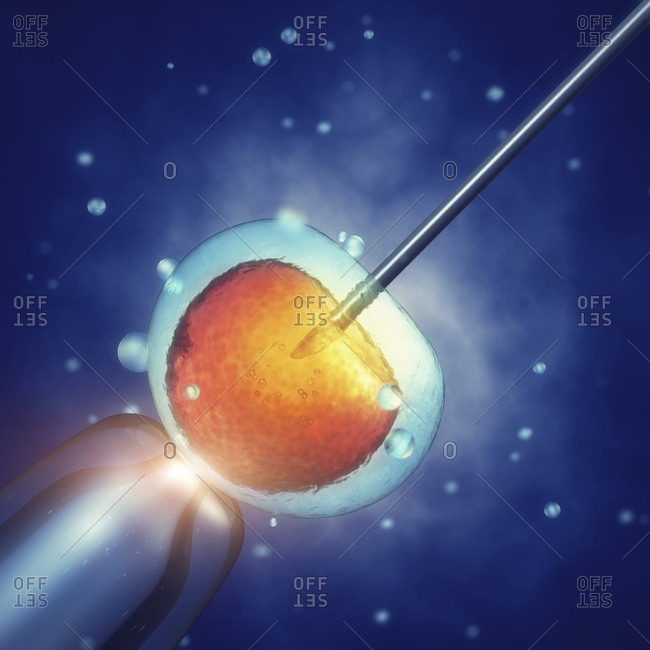 In vitro fertilization, illustration