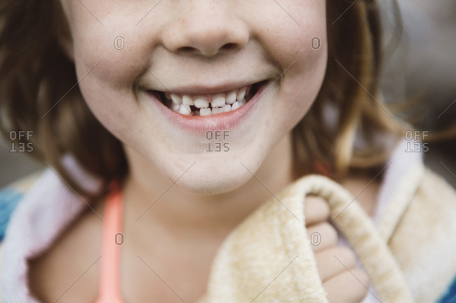 Young girl smiling with a missing tooth