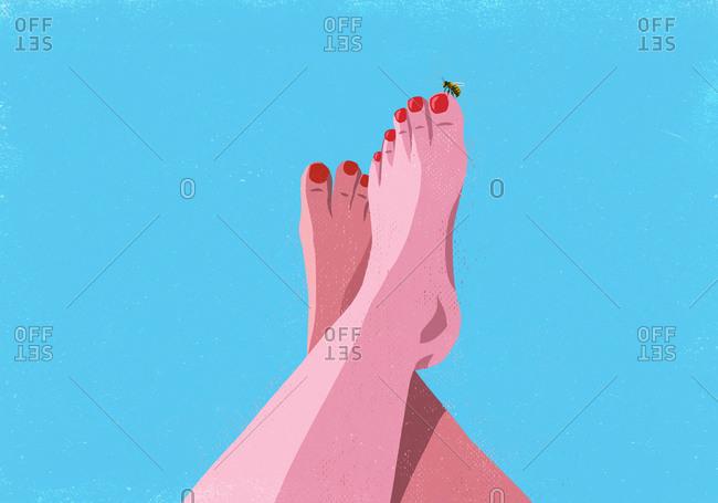 Bumble bee landing on big toe of sunburned woman