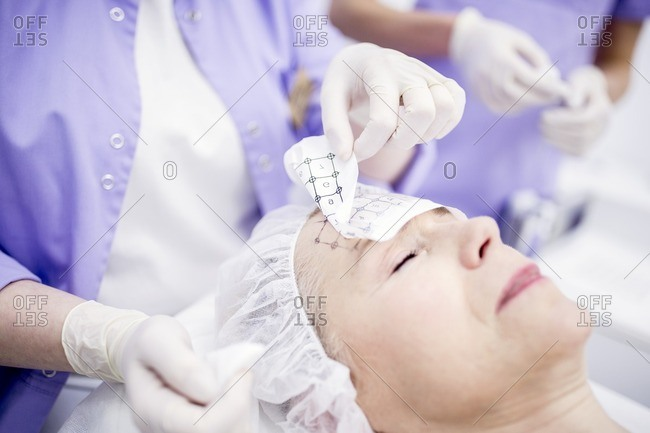 Dermatologist removing grid paper from mature woman's forehead for thermite therapy to soften wrinkles.