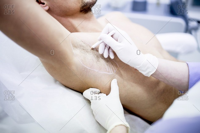 Dermatologist marking underarm for botox injection to treat excessive sweating, close-up.