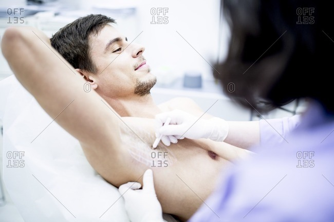 Dermatologist marking the underarm for botox injection to treat excessive sweating, close-up.