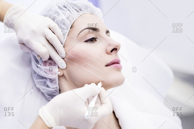 Dermatologist drawing marks on woman face for thread-lift, close-up.