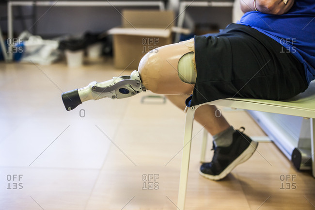 amputated young man testing the new leg prosthesis