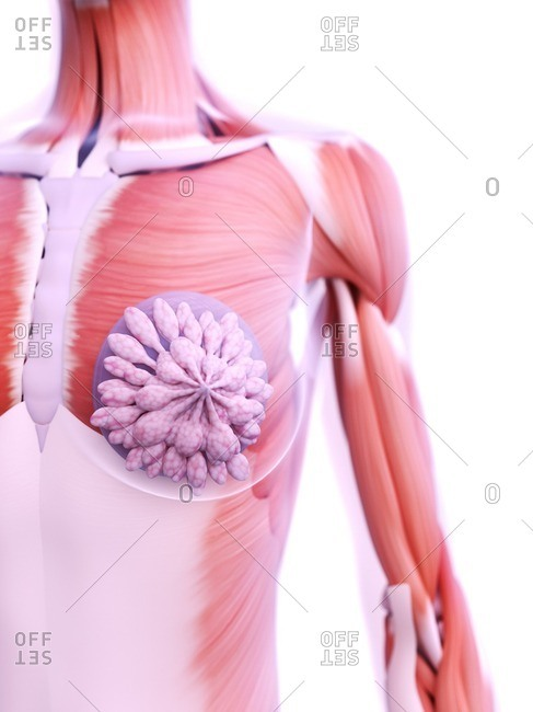 Breast implants, computer illustration.