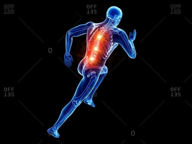 Runner with back pain, conceptual computer illustration.
