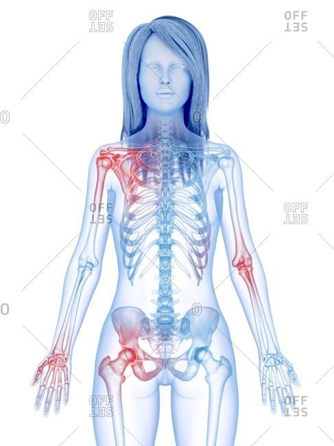 Painful joints, conceptual illustration