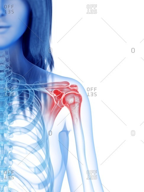 3d rendered medically accurate illustration of a painful shoulder