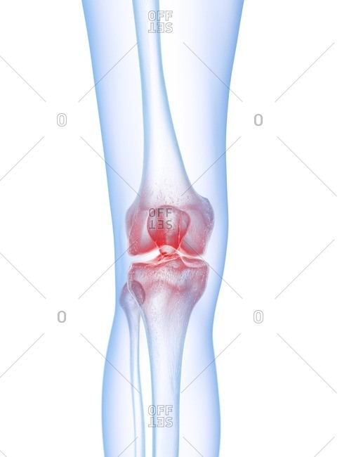3d rendered medically accurate illustration of a painful knee