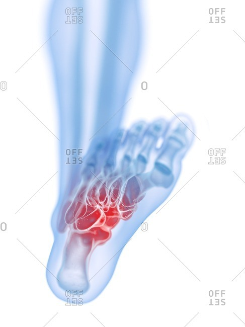 3d rendered medically accurate illustration of a painful foot