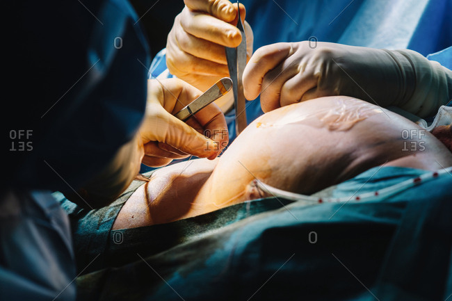 Plastic surgeon sewing up breast of female patient after inserting implants in operating room