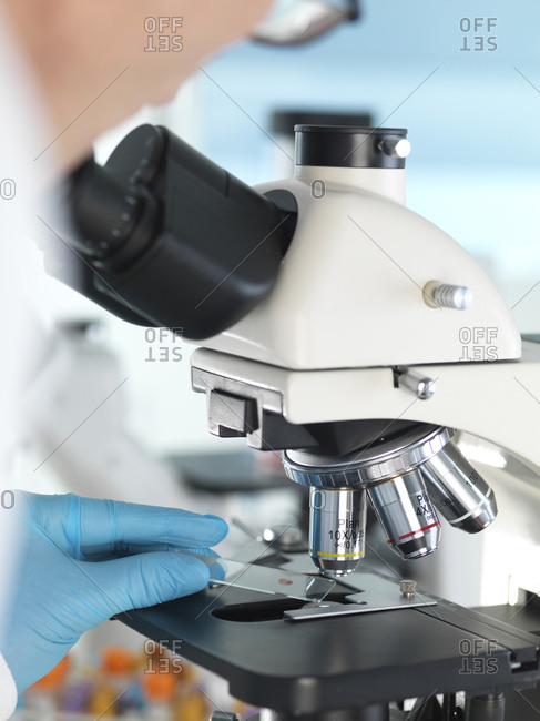 Medical Screening- Scientist examining a glass slide containing a human sample under a microscope and blood sample