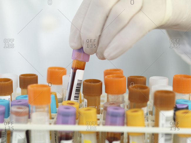 Close up of medical technician preparing samples for automated analysis in the lab